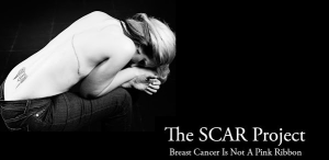 The SCAR Project